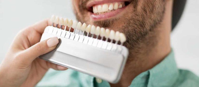 Best Dentist in Beaconsfield